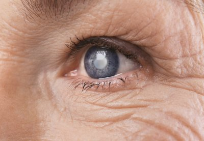 Glaucoma facts - Gerstein Eye Institute